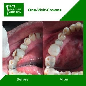 before-after-one-visit-crowns
