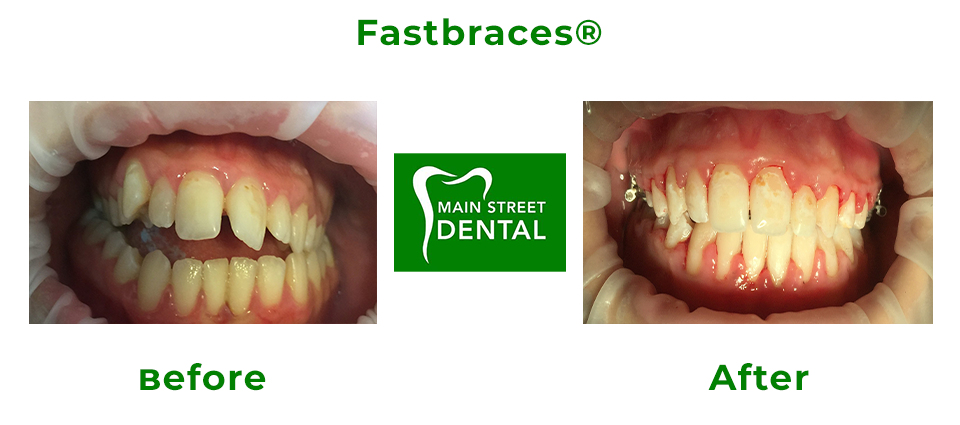 Fastbraces® Gallery